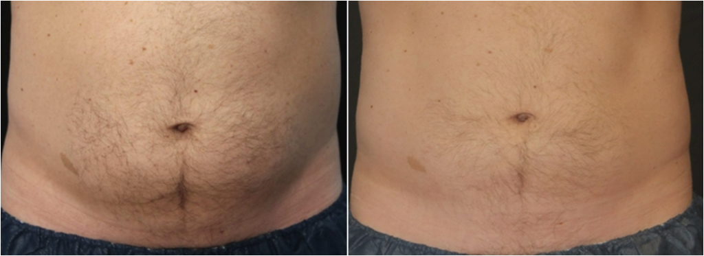 Coolsculpting homme