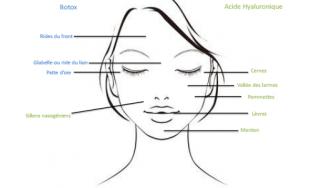 Acide Hyaluronique et botox: les différences