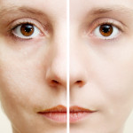 Que faire contre les pores dilatées ?