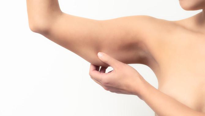 Le CoolSculpting et les bras