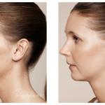 Préparer sa peau avant l'été: donner de l'éclat avec le SkinBooster